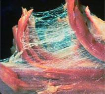 筋膜とは筋繊維を覆い、筋繊維同士を繋ぎ、骨や関節に付着している。筋膜が筋繊維を繋いでいる様子が伺える画像。